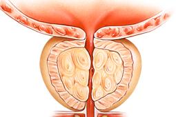 aumento-prostata